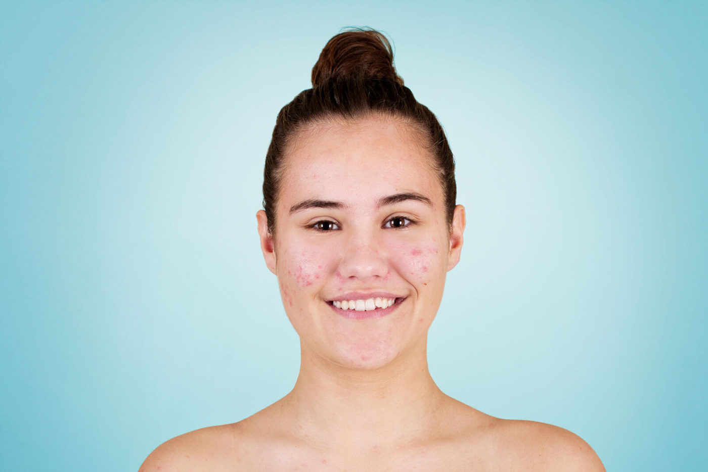 Woman with brown hair and pimples on her cheeks