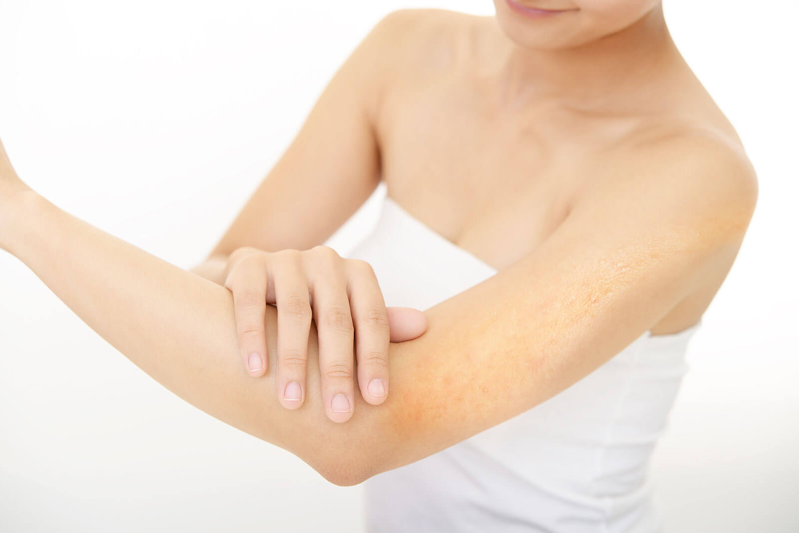 Woman is touching her arm with Keratosis Pilaris
