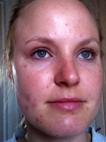 Before After Testimonial acne